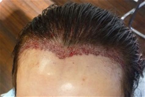 human skin and hair mold picture 1