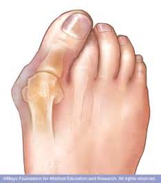 foot problems sore toe joint picture 18