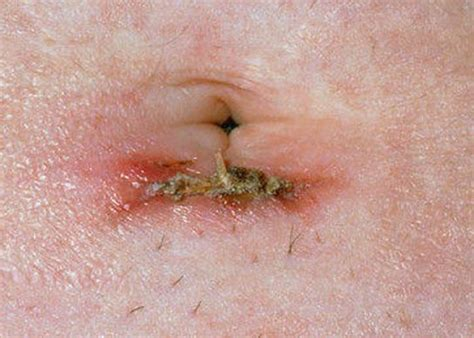 skin yeast infection incision picture 21