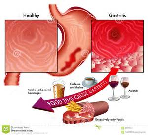 stomach ulcer diet picture 9