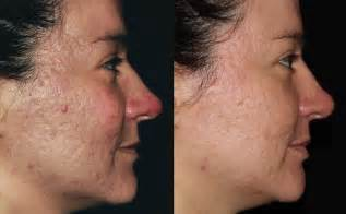 light treatment for acne picture 6