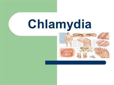 can oregono cure chlamydia ? picture 1