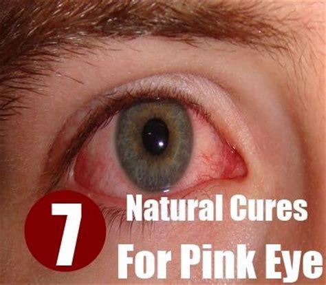 herbal remedies red eyes picture 10