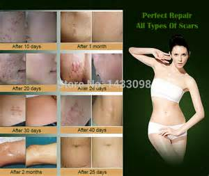 internal acne scar and stretch mark remover picture 10