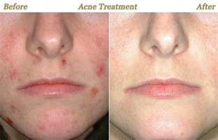 acne reducing birth control picture 3