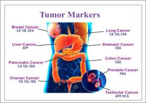 colon tumor picture 3