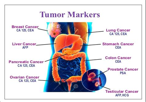 picture of colon cancer picture 1