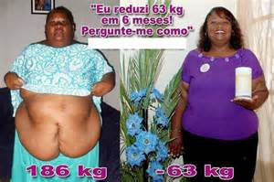 obesity weight loss picture 9