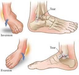 care for muscle tares and sprains picture 11