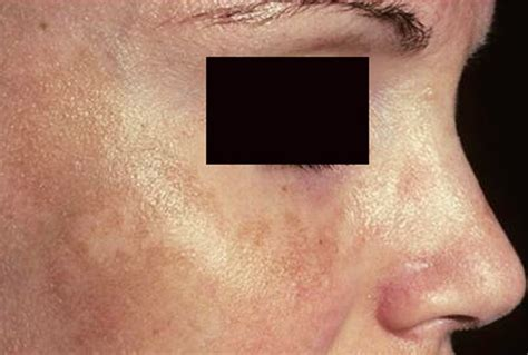 dark spots on skin picture 17