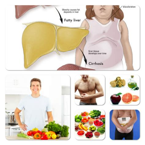 fatty liver diet picture 13