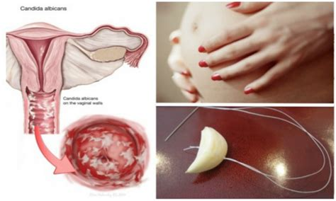 yeast infections in pregnancy picture 1