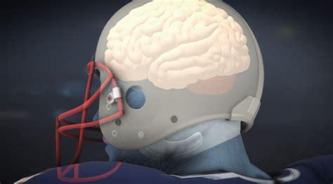 brain pills tom brady picture 5