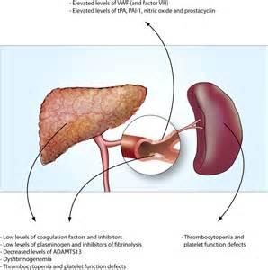 fibrinolysis and liver failure picture 7