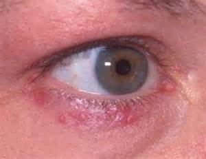 acne under eye picture 17