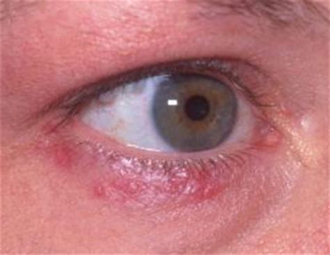 acne under eye picture 3