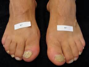 pinpoint laser for toenail fungus in utah picture 1