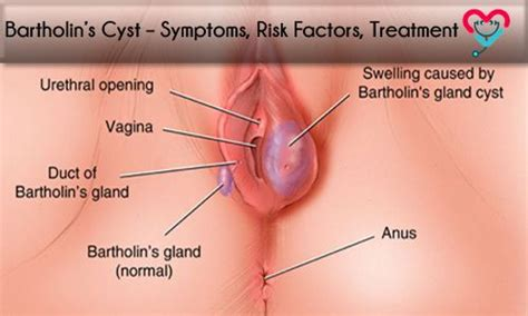 bartholin cyst natural treatment picture 7