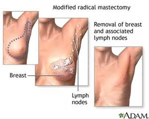 recovering after thyroid removal picture 13