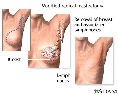 changes in skin after hysterectomy picture 11