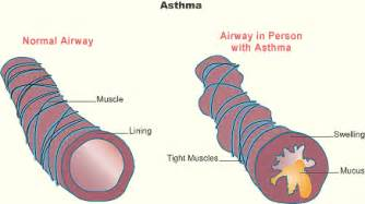 natural cure for constricted airways picture 1