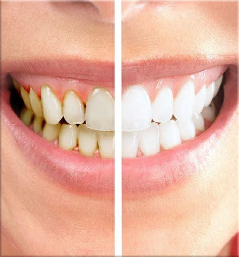 dentist porcelain teeth picture 7