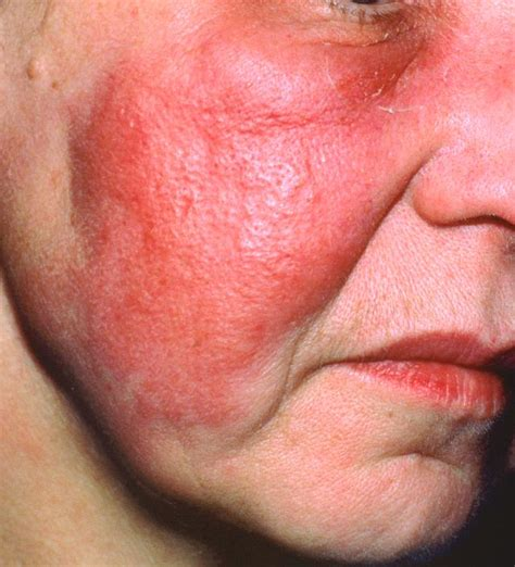 antibiotics for skin infection picture 2