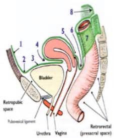anterior bladder peritoneum picture 2