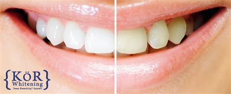 fort lauderdale teeth whitening picture 11