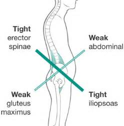 hip pain leftside body muscles weak picture 3
