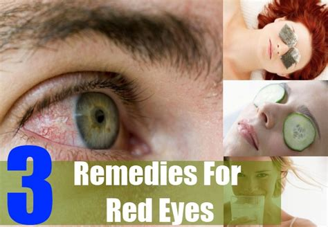 chinese herbal remedy for red eyes picture 4
