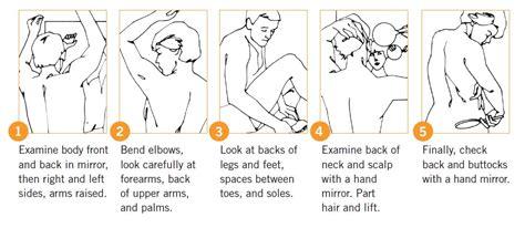 annual full body skin exam picture 7