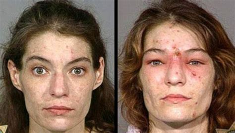 meth mouth aging effects picture 5