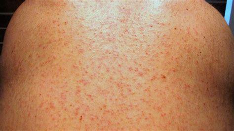 maculopapular skin rash picture 11