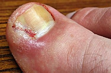 can candida cause toenail fungus picture 15