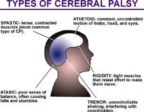 cerebral palsy and aging picture 10