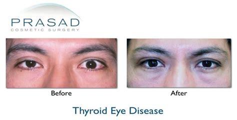 eye disease thyroid picture 1