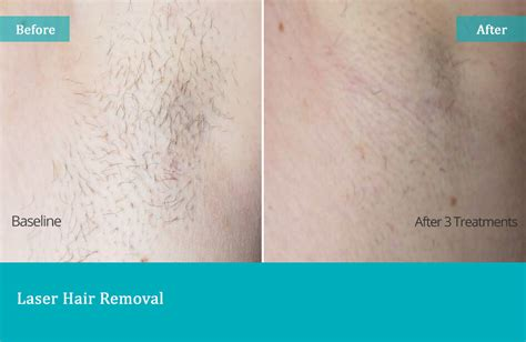 california laser hair removal picture 3