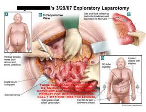 Intestinal obstruction surgery picture 5