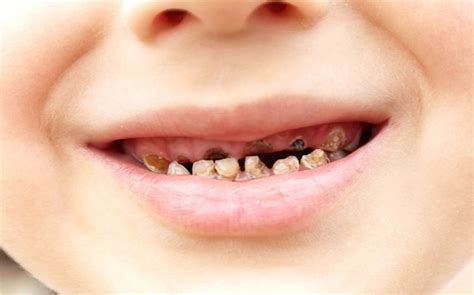 decaying teeth pictures picture 21