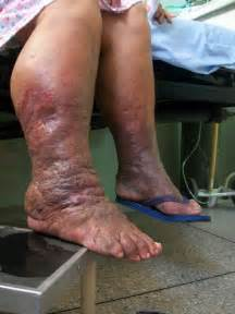 no appee weight loss swollen foot are symptoms picture 2