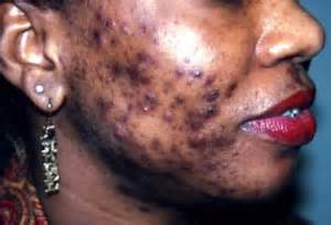 causes of cystic acne picture 3
