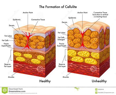 free cellulite pics picture 11