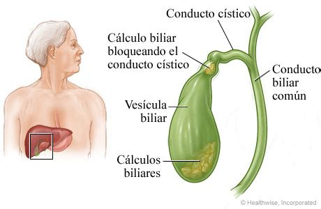 symptoms of bad gall bladder picture 14