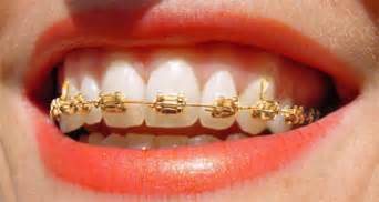 dr teeth gold picture 3