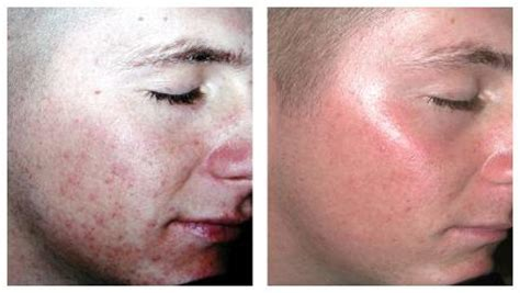 acne laser treatment picture 6