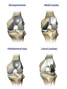partial knee joint replacement picture 10