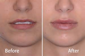 vanderveer center price of lip injection picture 5