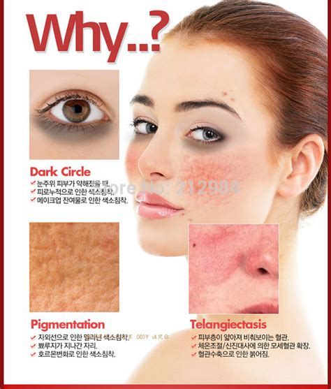 acne free in 3 days free picture 9