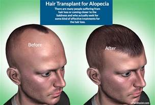 anesthesia side effects hair loss picture 9